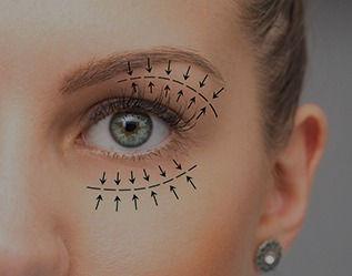eyelid-surgeries_edited.jpg