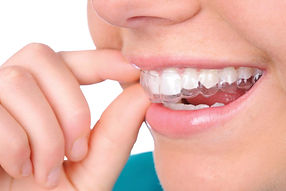 Orthodontic treatment braces Invisalign