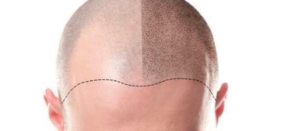 scalp%20micro%20pigmentation_edited.jpg
