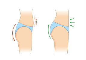 reduce-fat-and-cellulite-at-buttock-and-