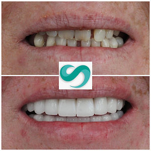 dental treatment in Turkey