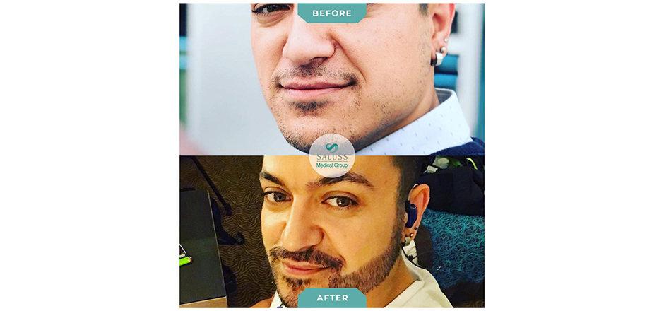 Beard-Transplant.jpg