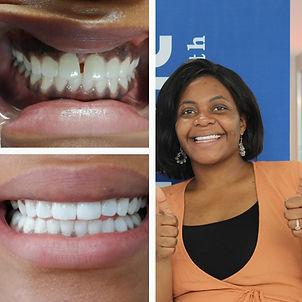 Tavonga Dakar dental treatment .jpeg