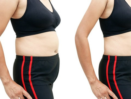 Gastric Sleeve and Gastric Bypass Revision