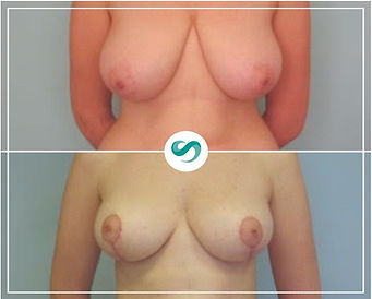 Breast uplift breast surgeries before an