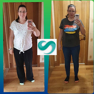 Gastric Sleeve Turkey before and after p