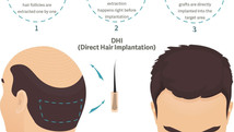 Differences of FUE and DHI Hair Transplant Methods