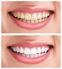 teeth whitening laser bleaching oral hyg