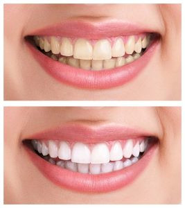 Plaque Cleaning, Teeth Whitening, Laser Bleaching