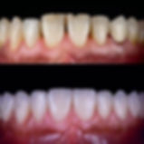 EMAX Zirconium Crowns. Dental Crowns