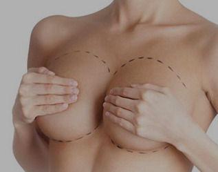 breastreduction_edited.jpg