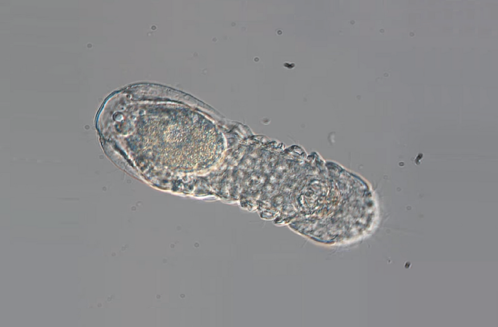 micrognathozoa.png