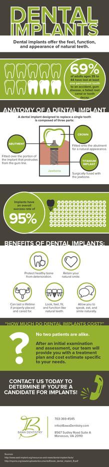Dental Implants - Infographic