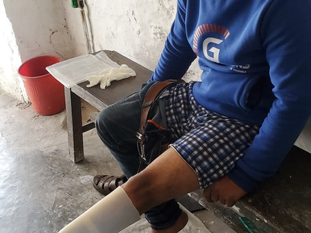 Making Suraj Smile: A Prosthetic Case Study In Nepal
