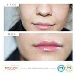 lip fillers before and after 1ml