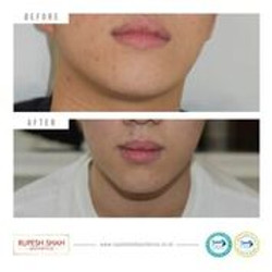 before and after botox Masseter Mus