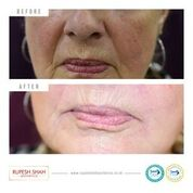 Nose to Mouth Dermal Fillers