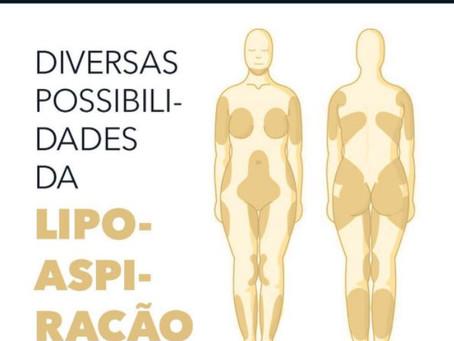 DIVERSAS POSSIBILIDADES DA LIPOASPIRAÇÃO
