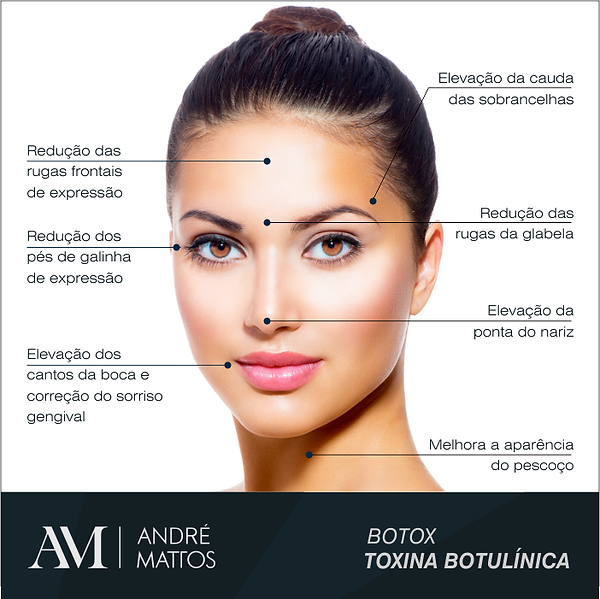 botox-toxina-botulinica-rj.png