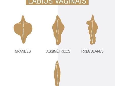 Labioplastia, Cirurgia dos Lábios Vaginais