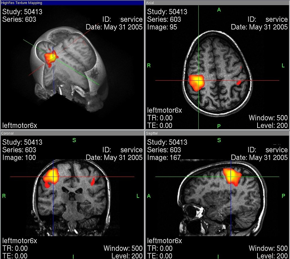 Functional Magnetic Resonance Imaging (FMRI) of the Human Brain