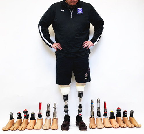 Peter with the foot/ankle systems he tested