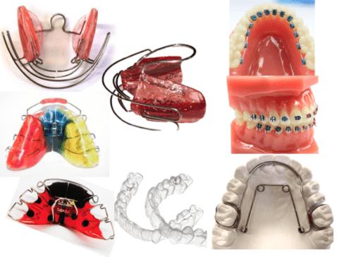 Ejemplos de aparatos de ortodoncia fijos y removibles.