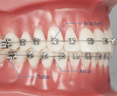 Componentes de brackets fijos