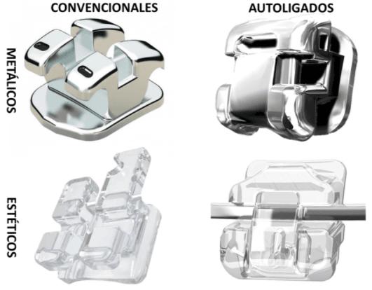Comparacion entre brackets convencionales y de autoligado