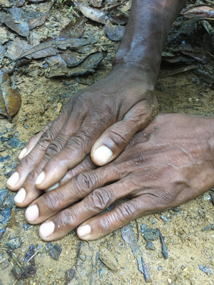 Emile's hands, which have wrangled 10,000 snakes!