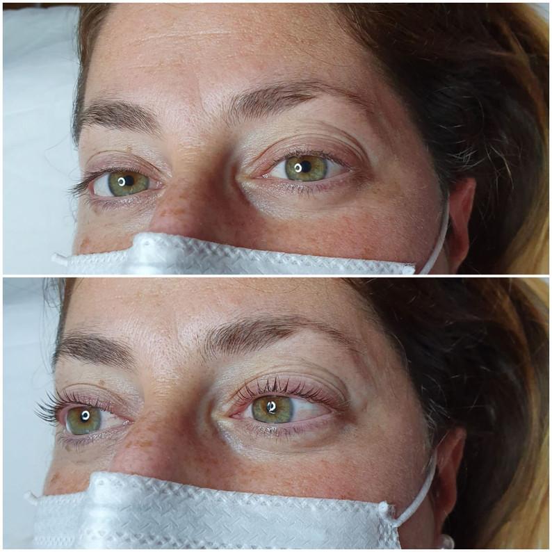 Rehaussement de cils + soin botox