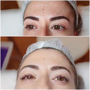 Réhaussement de cils + soin botox