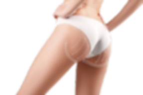 CONDITIONS-FESSES_UP_resized_edited.png