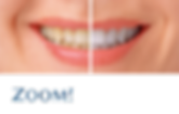 ZOOM Teeth Whitening.png