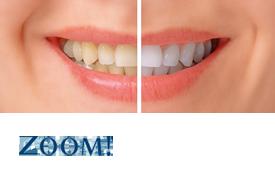 ZOOM Teeth Whitening.png