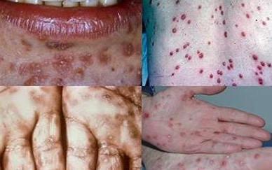 10 สัญญาณของอาการกามโรคที่คุณต้องเช็คด่วน