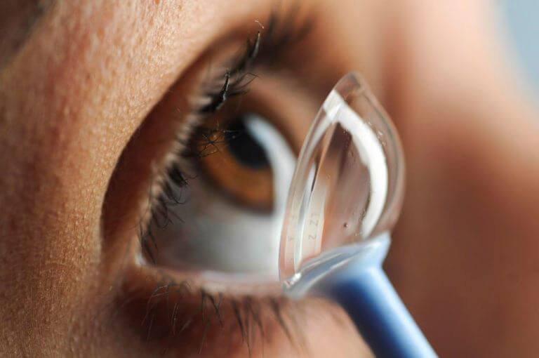 Speciality Contact Lens Exam