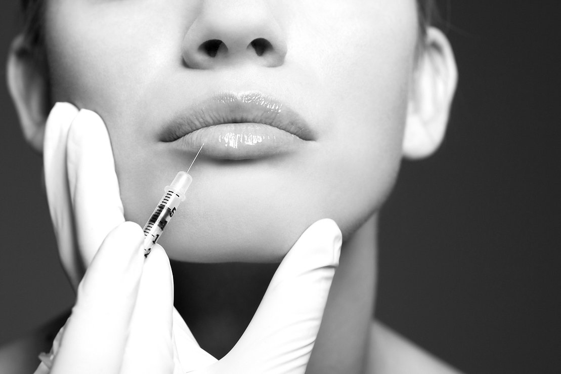 botox derby, dermal fillers derby, lip filler derby, medical aethetics, derby aesthetics, qualified nurse botox derby