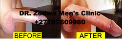 Penis Enlargement Solutions 0787609980