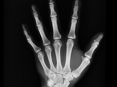 Osteoarthritis and degenerative conditions