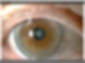 Grauer Star , Augenarzt St. Valentin