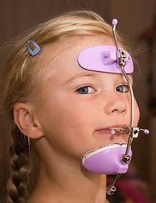 Ortopedia Facial infantil