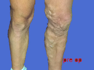 Treatment of Varicose Veins (a discussion)