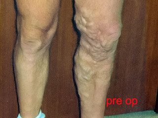 Introduction to Varicose Veins