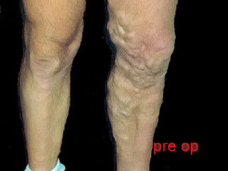 Surgical Treatment of Varicose Veins (RF Ablation)