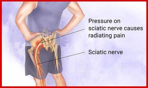 How Chiropractic Care for Sciatica Works