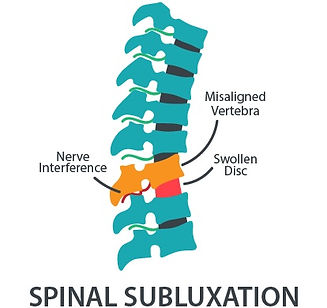 spine-subluxation.jpg