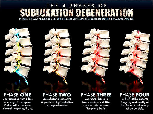 Spine Degeneration Phases