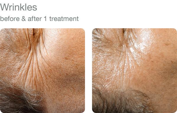 elapromed_09_wrinkles.jpg
