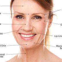 customized facials facelift skin rejuvenation lip plumping eye lift jowl lift and firm collagen elasticity